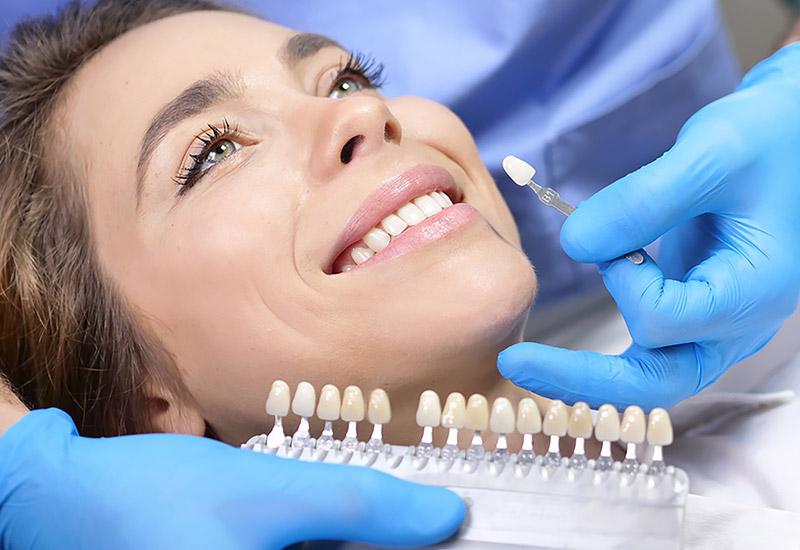 teeth whitening in west edmonton